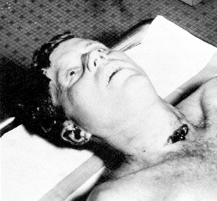 JFKautopsy photographs surfaced in the late 1980s, and showed his face